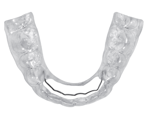 Fix Broken Retainers Simply and Easily with Maintain